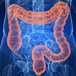 Retocolite Ulcerativa Inespecífica